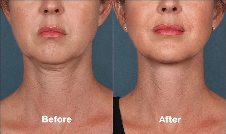 KybellaPatientPR3BeforeAfterFrontView Kybella Richmond Virginia Plastic Surgeon