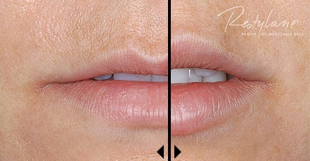 Restylane-Cost-before-and-after-photos Restylane Treatments Richmond Richmond Virginia Plastic Surgeon