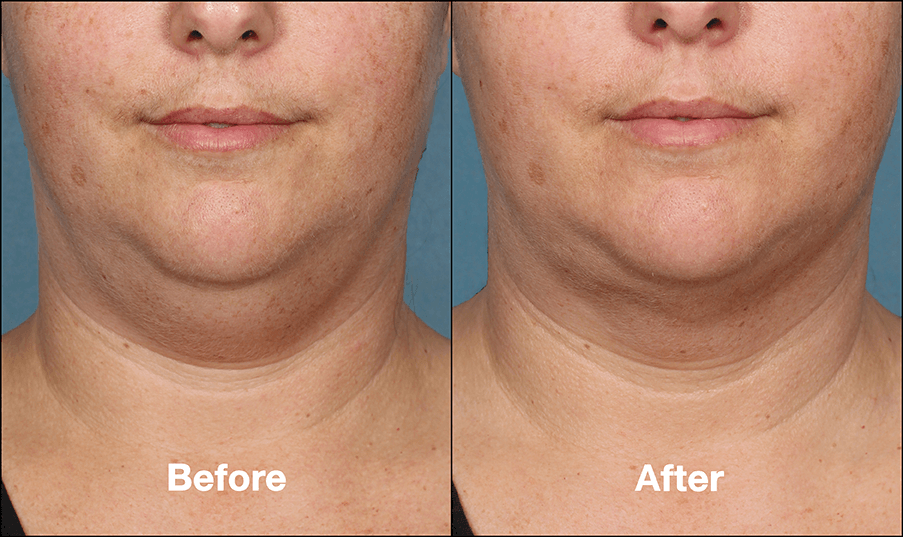 KybellaPatientPR5BeforeAfterFrontView Kybella Richmond Virginia Plastic Surgeon