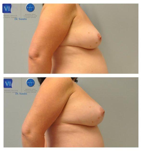 Breast Augmentation Through Fat Grafting Richmond Plastic Surgery