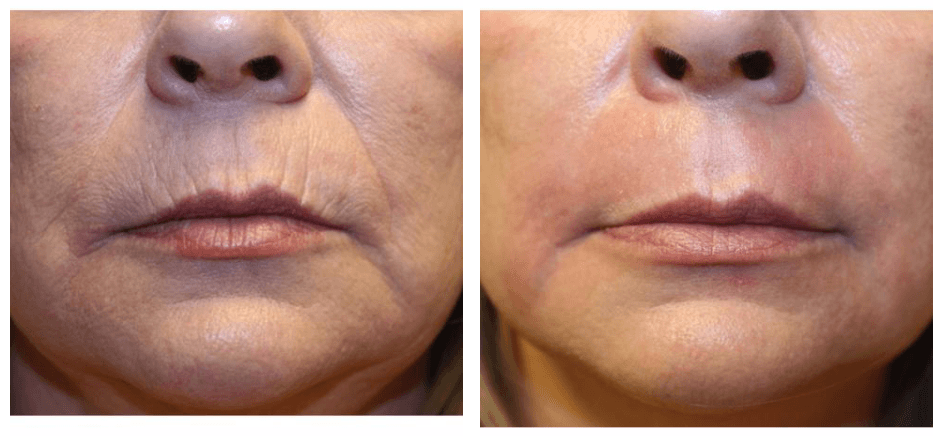 JPlasma_Perioral_2 J-Plasma for Skin Richmond Virginia Plastic Surgeon