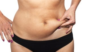 shutterstock_98660858-300x183 How much does micro liposuction cost? Richmond Virginia Plastic Surgeon